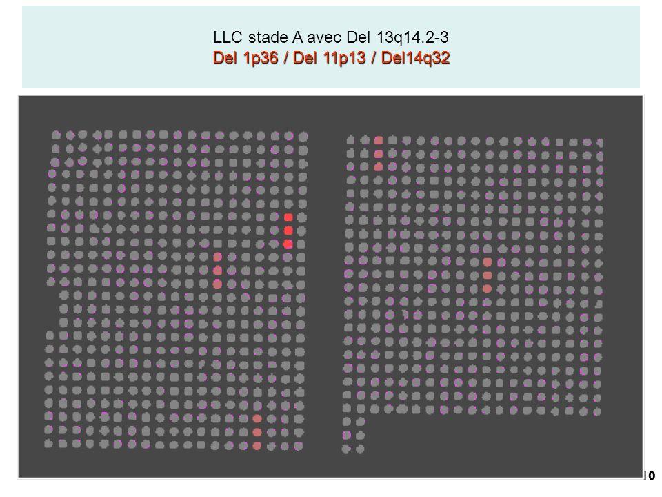 LLC stade A avec Del 13q14.2-3 Del 1p36 / Del 11p13 / Del14q32