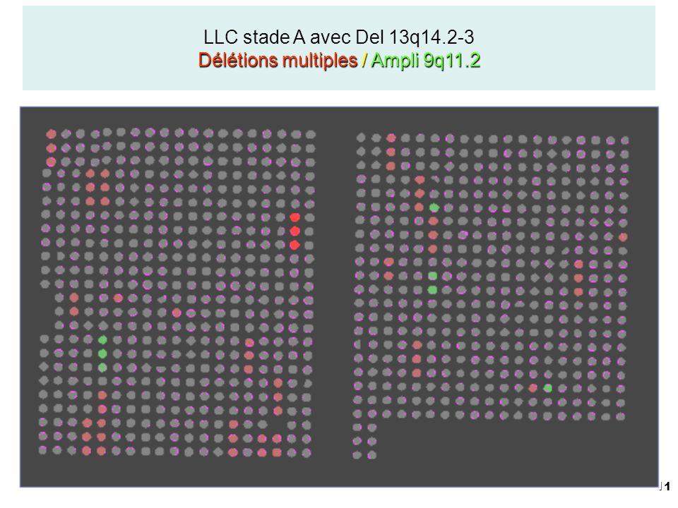 LLC stade A avec Del 13q14.2-3 Délétions multiples / Ampli 9q11.2