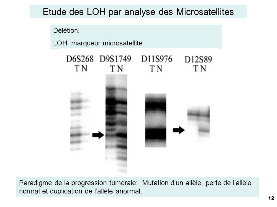 Etude des LOH par analyse des Microsatellites