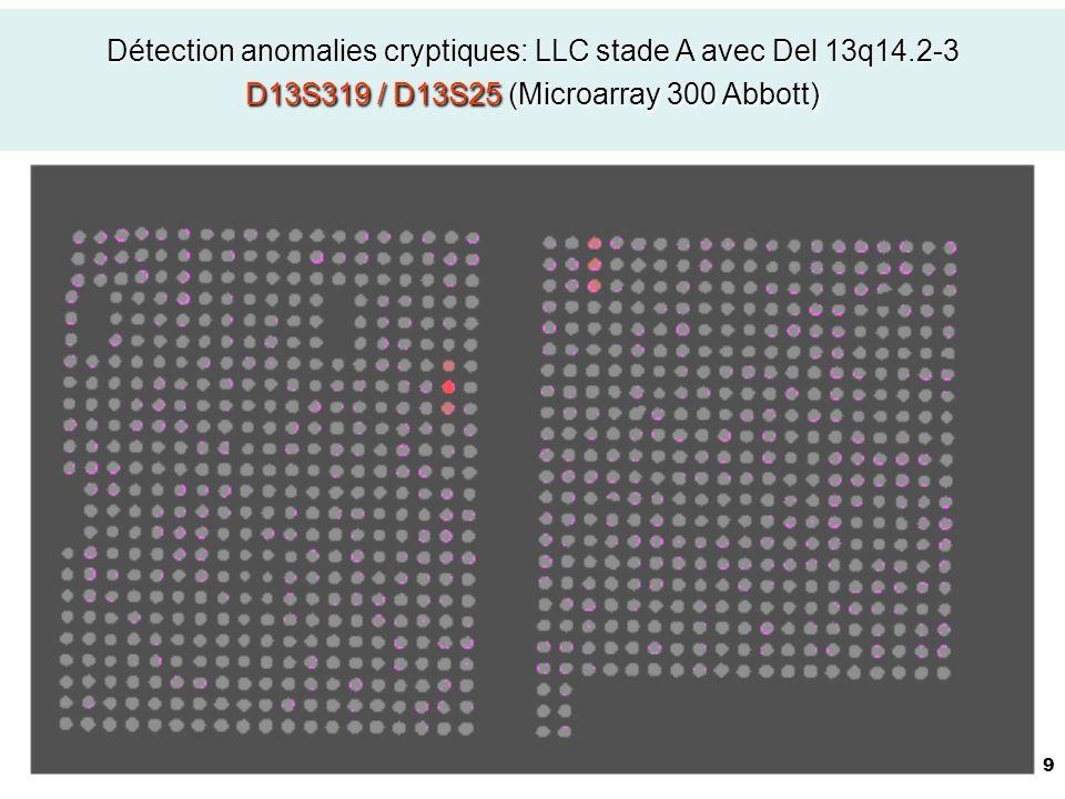 Détection anomalies cryptiques: LLC stade A avec Del 13q14