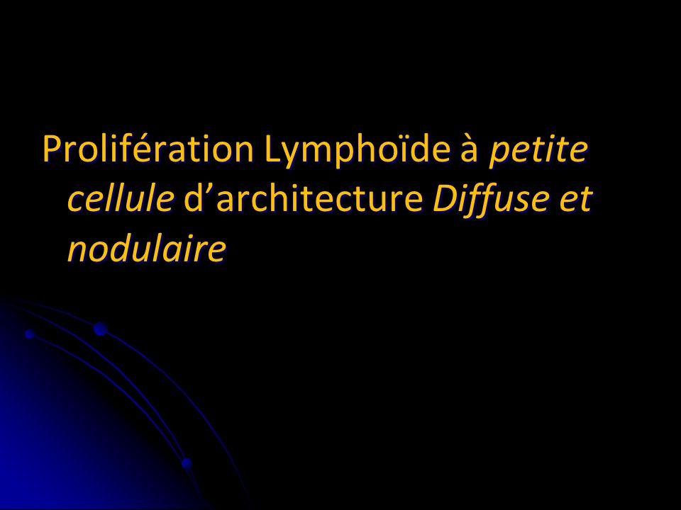 Prolifération Lymphoïde à petite cellule d'architecture Diffuse et nodulaire