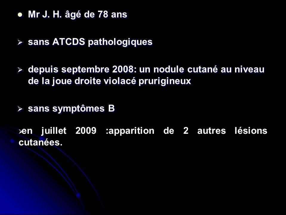 Mr J. H. âgé de 78 anssans ATCDS pathologiques. depuis septembre 2008: un nodule cutané au niveau de la joue droite violacé prurigineux.