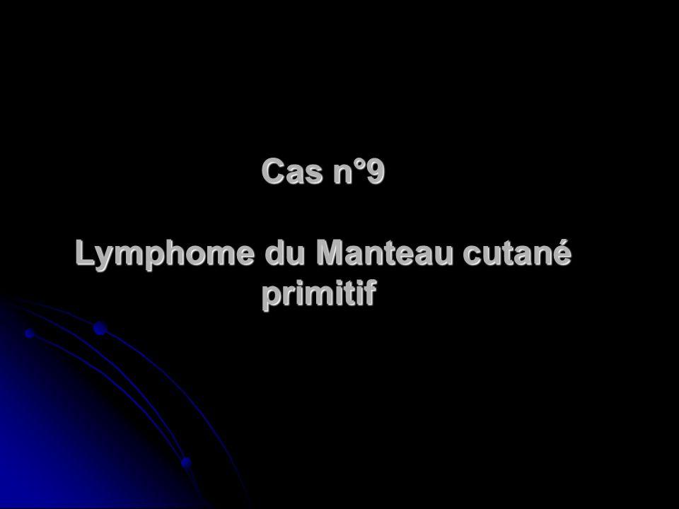 Cas n°9 Lymphome du Manteau cutané primitif