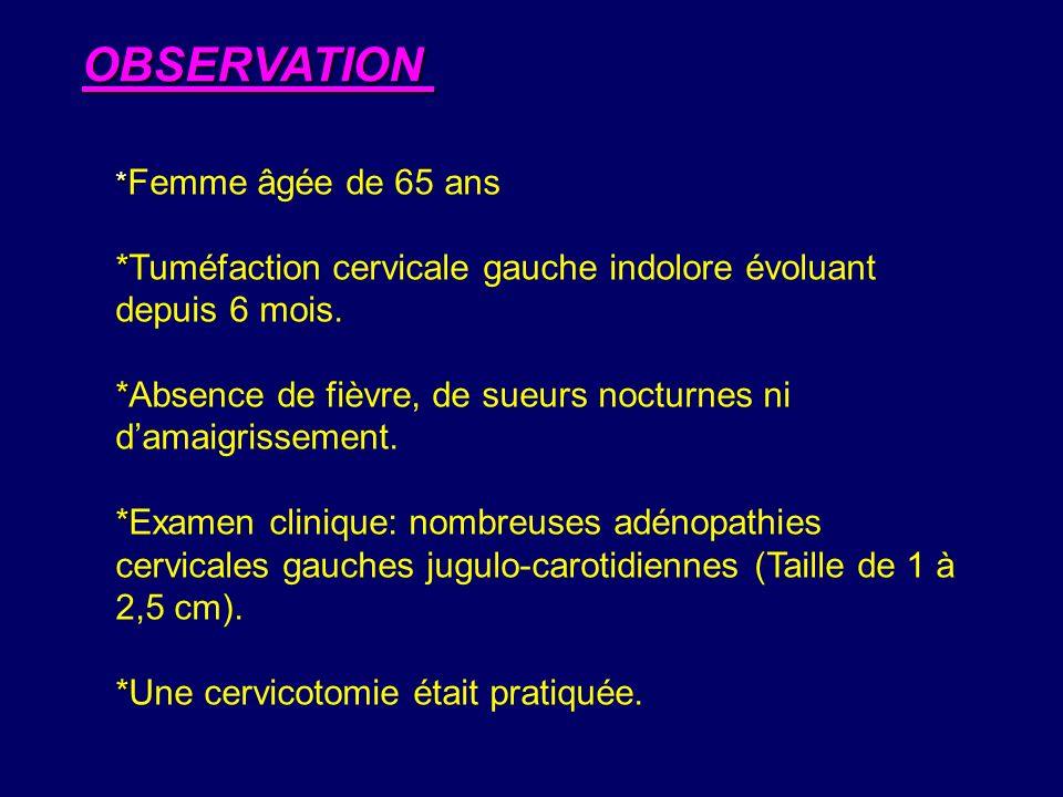 OBSERVATION *Femme âgée de 65 ans. *Tuméfaction cervicale gauche indolore évoluant depuis 6 mois.