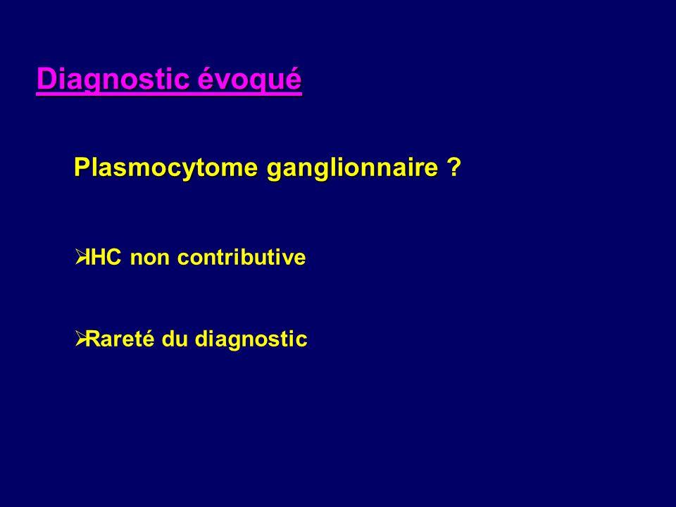 Diagnostic évoqué Plasmocytome ganglionnaire IHC non contributive