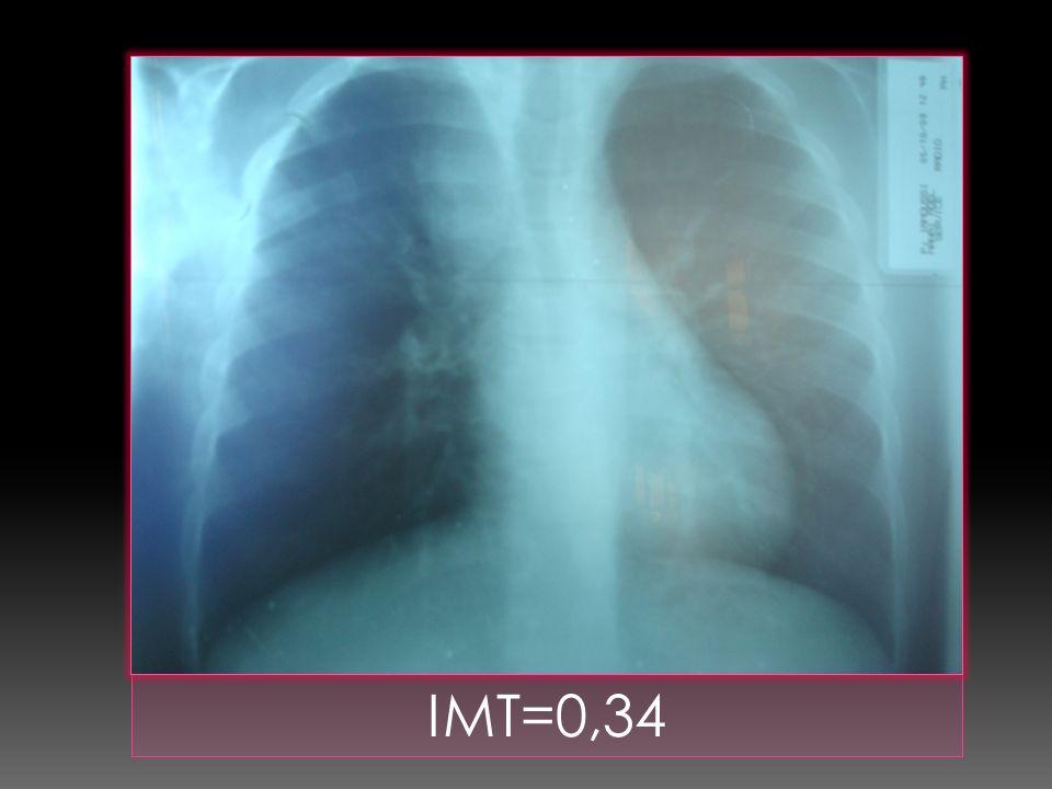 IMT=0,34