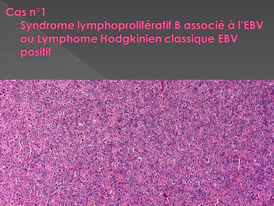 Cas n°1 Syndrome lymphoprolifératif B associé à l'EBV ou Lymphome Hodgkinien classique EBV positif