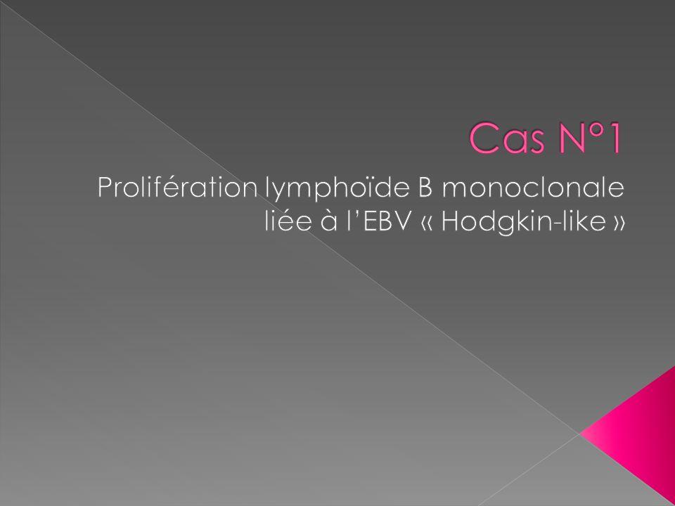 Prolifération lymphoïde B monoclonale liée à l'EBV « Hodgkin-like »