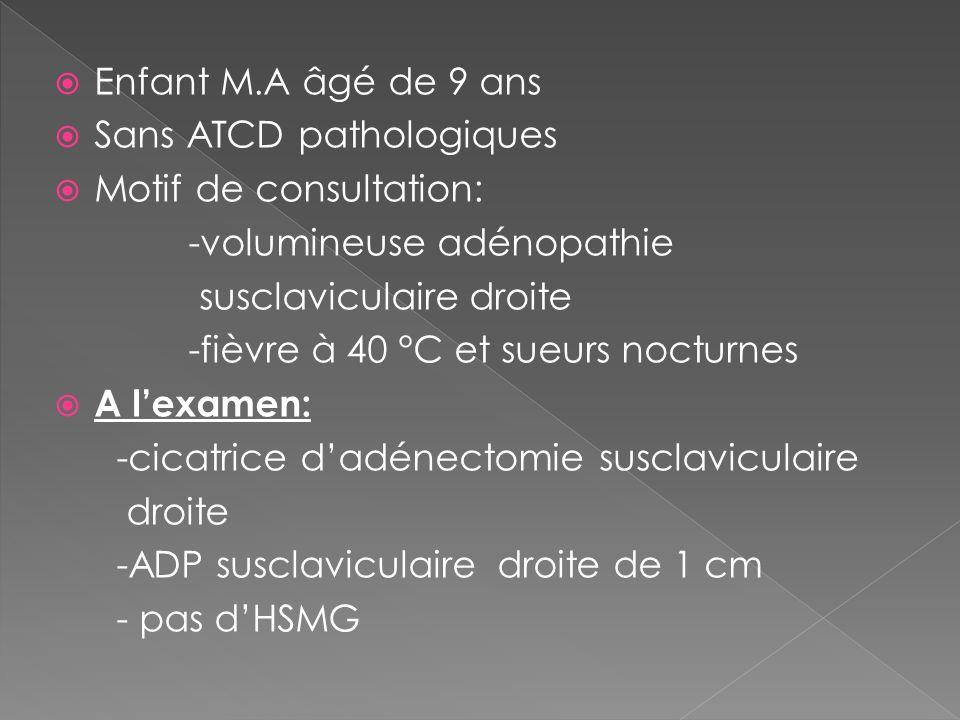 Enfant M.A âgé de 9 ans Sans ATCD pathologiques. Motif de consultation: -volumineuse adénopathie.