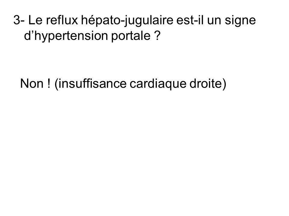 3- Le reflux hépato-jugulaire est-il un signe d'hypertension portale