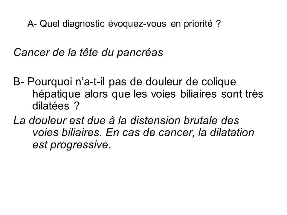 Cancer de la tête du pancréas