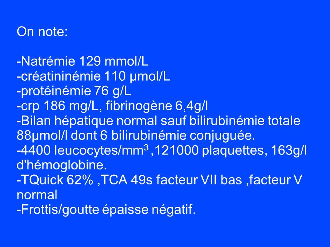 On note: -Natrémie 129 mmol/L. -créatininémie 110 µmol/L. -protéinémie 76 g/L. -crp 186 mg/L, fibrinogène 6,4g/l.