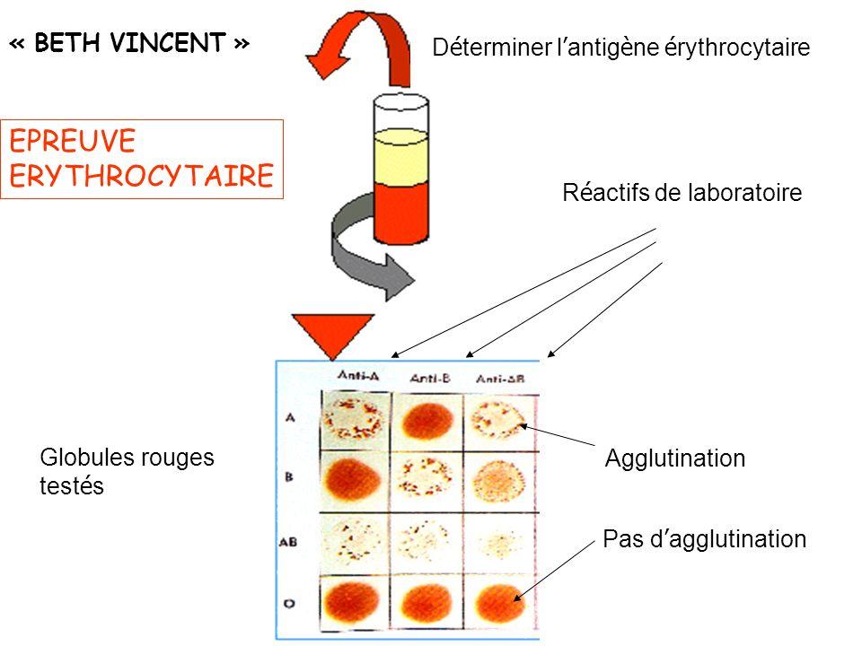 Déterminer l'antigène érythrocytaire