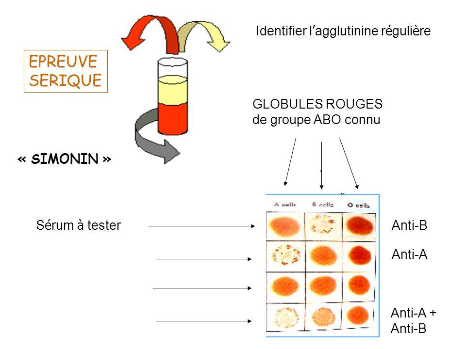 EPREUVE SERIQUE Identifier l'agglutinine régulière GLOBULES ROUGES