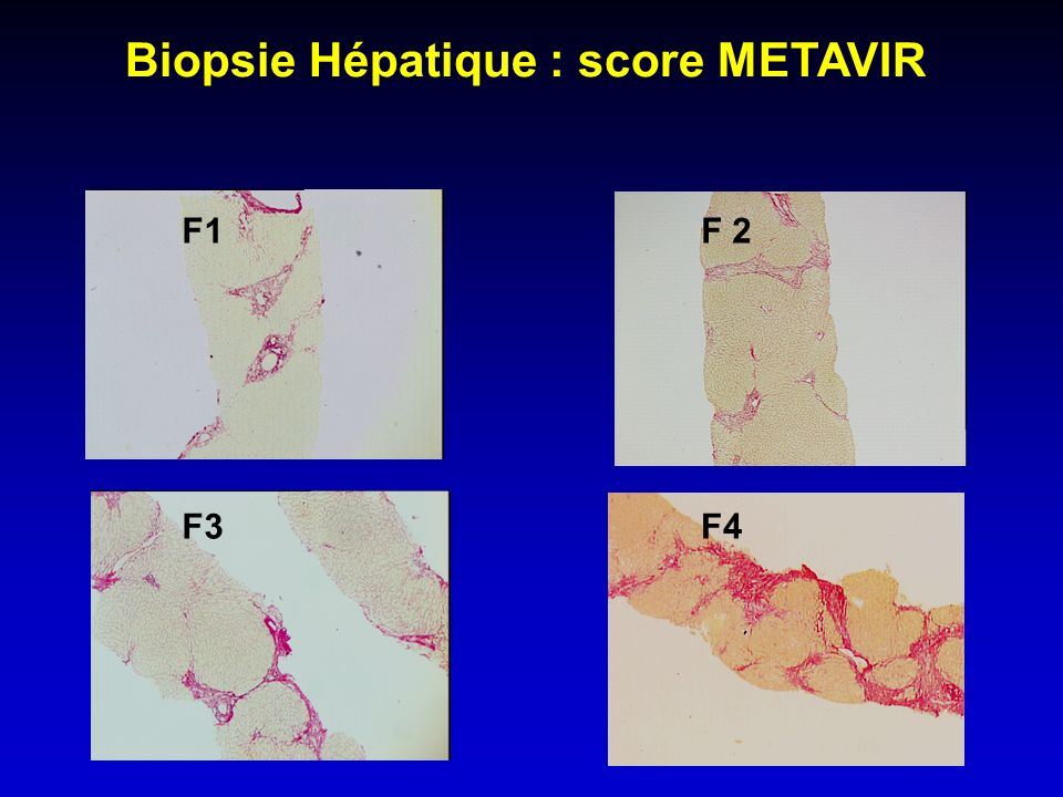 Biopsie Hépatique : score METAVIR