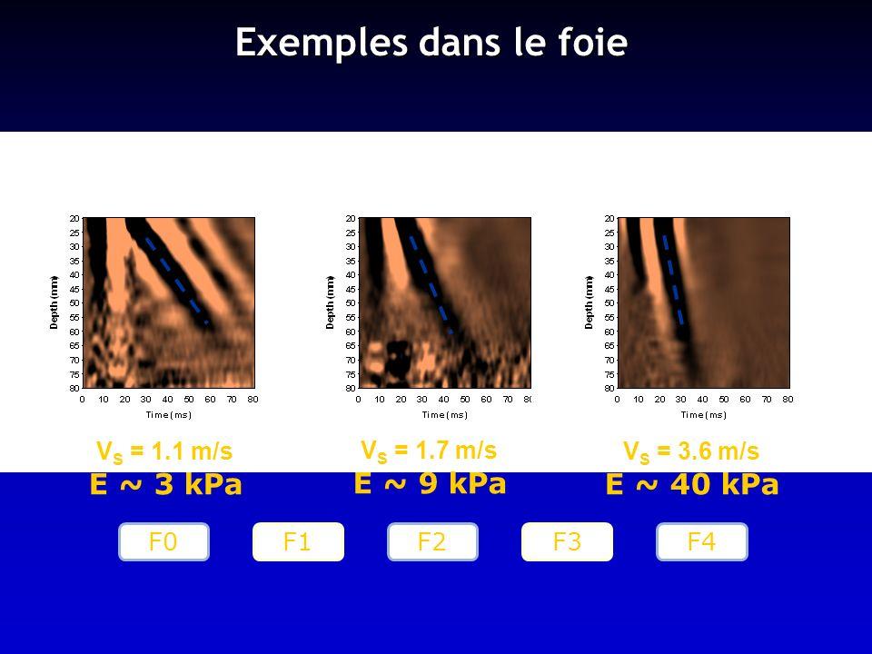 Exemples dans le foie E ~ 3 kPa E ~ 9 kPa E ~ 40 kPa VS = 1.1 m/s