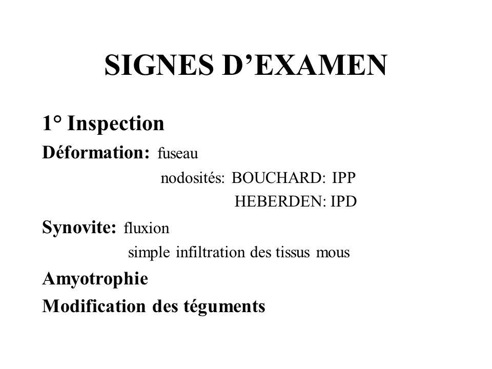 SIGNES D'EXAMEN 1° Inspection Déformation: fuseau Synovite: fluxion