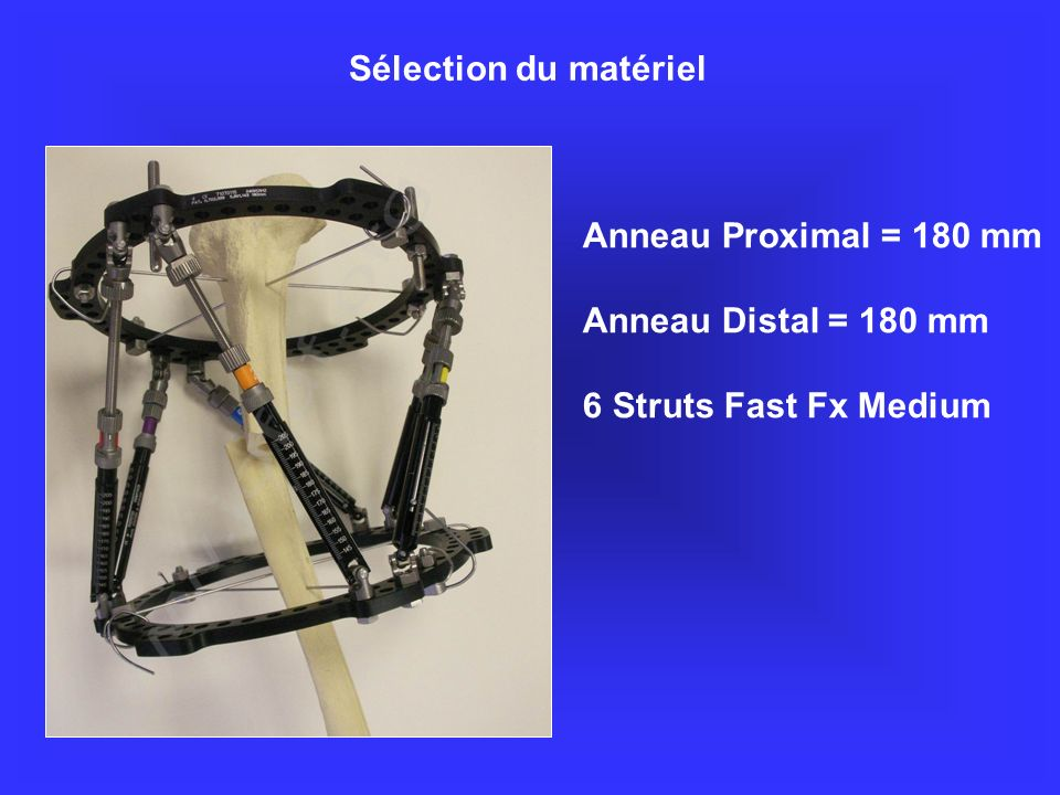 www.jofdf.org Sélection du matériel Anneau Proximal = 180 mm
