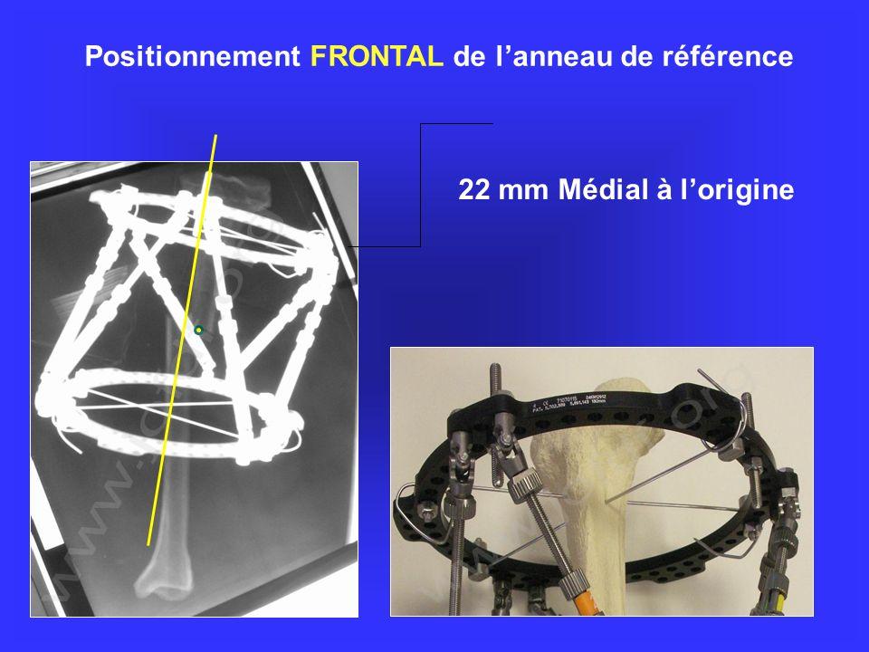 Positionnement FRONTAL de l'anneau de référence
