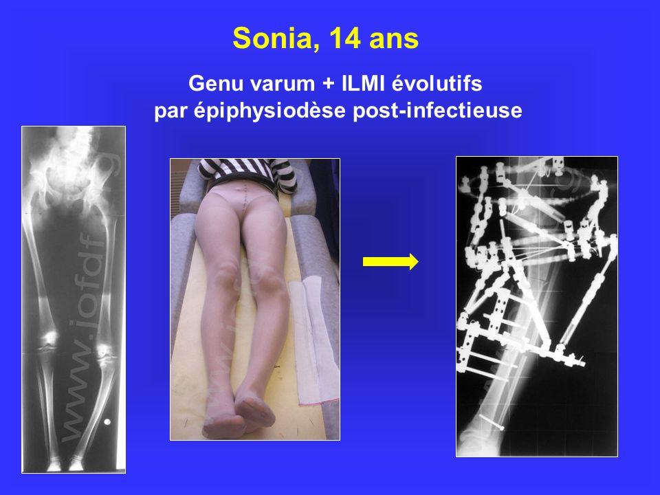 Genu varum + ILMI évolutifs par épiphysiodèse post-infectieuse