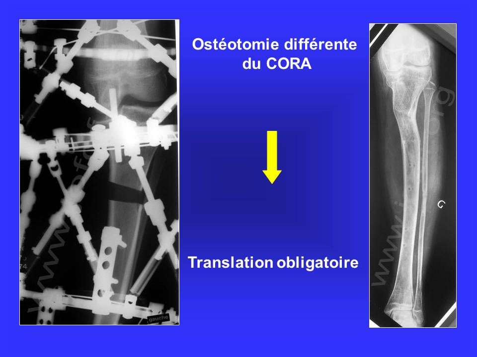 Ostéotomie différente