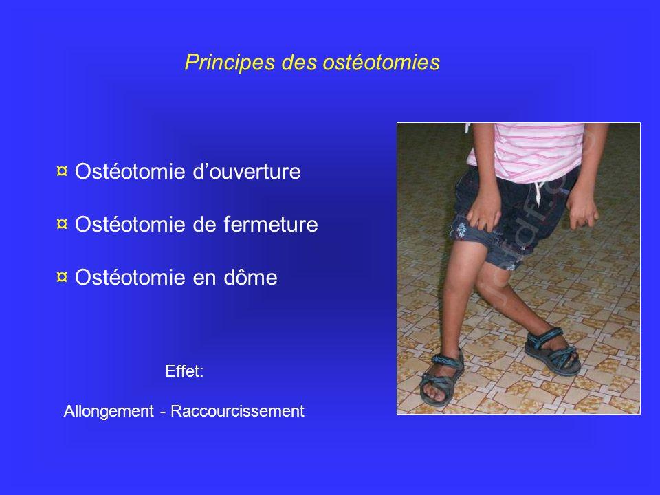www.jofdf.org Principes des ostéotomies ¤ Ostéotomie d'ouverture