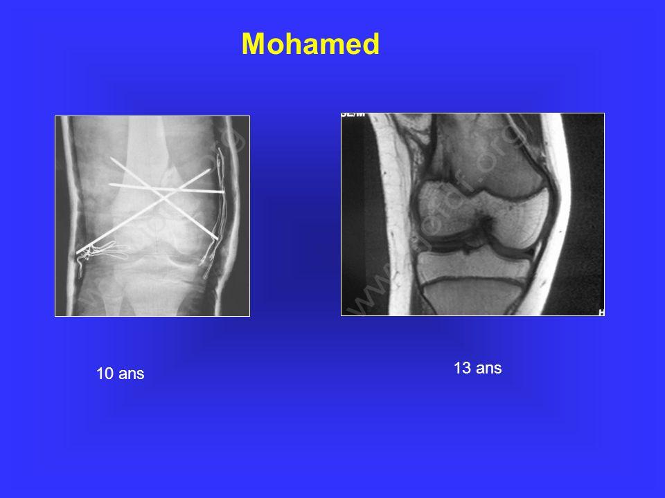 Mohamed www.jofdf.org www.jofdf.org 13 ans 10 ans 20