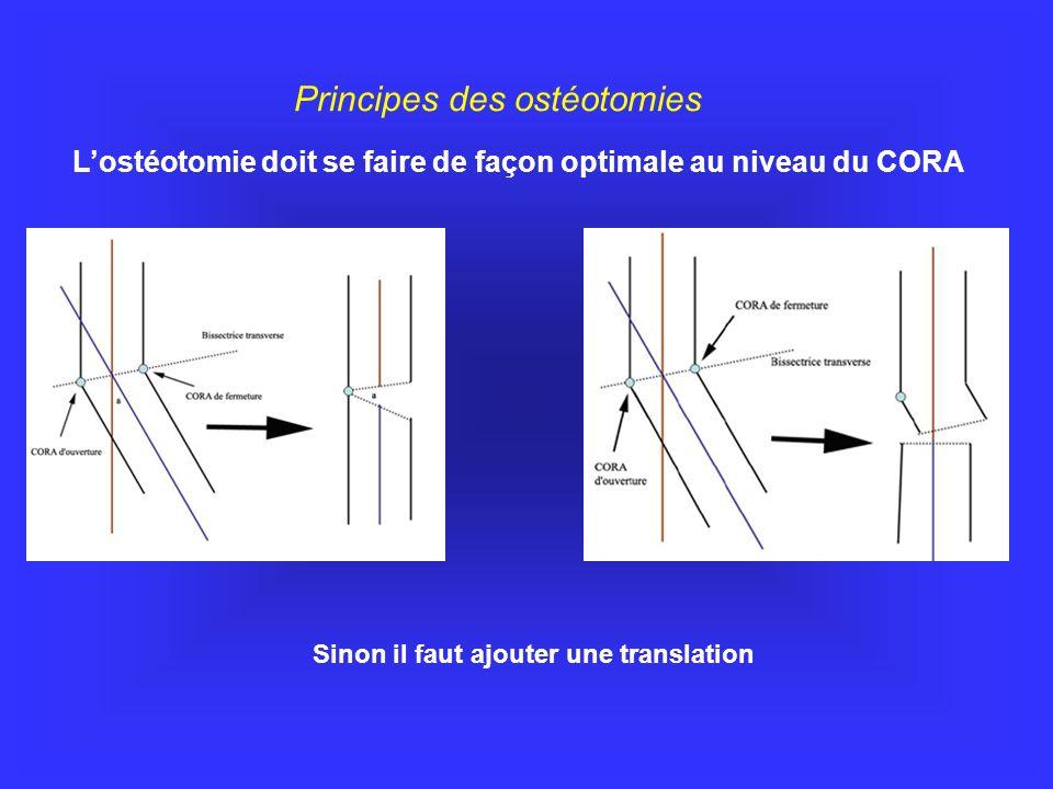 L'ostéotomie doit se faire de façon optimale au niveau du CORA