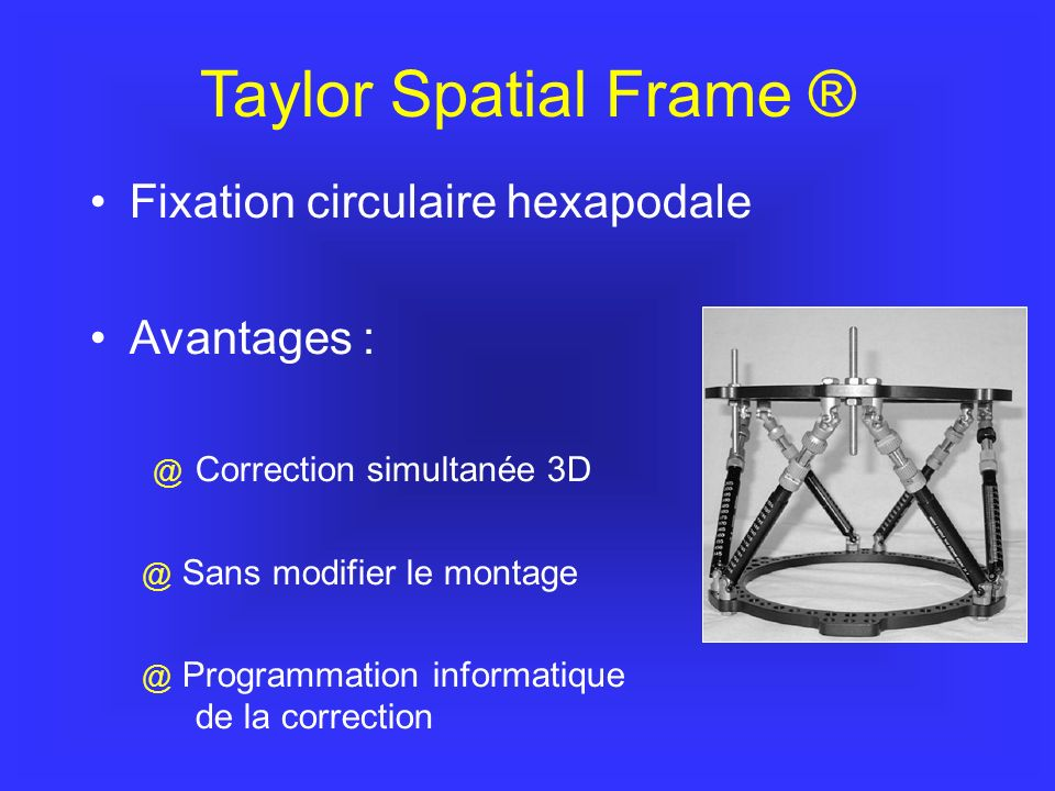 Taylor Spatial Frame ® Fixation circulaire hexapodale Avantages :