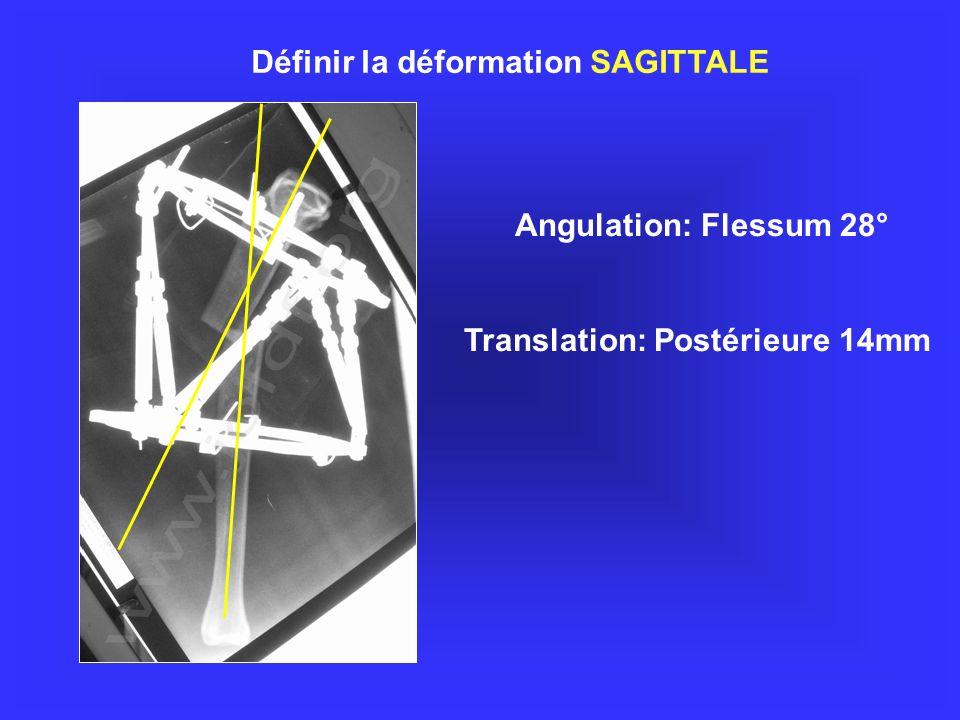 Translation: Postérieure 14mm