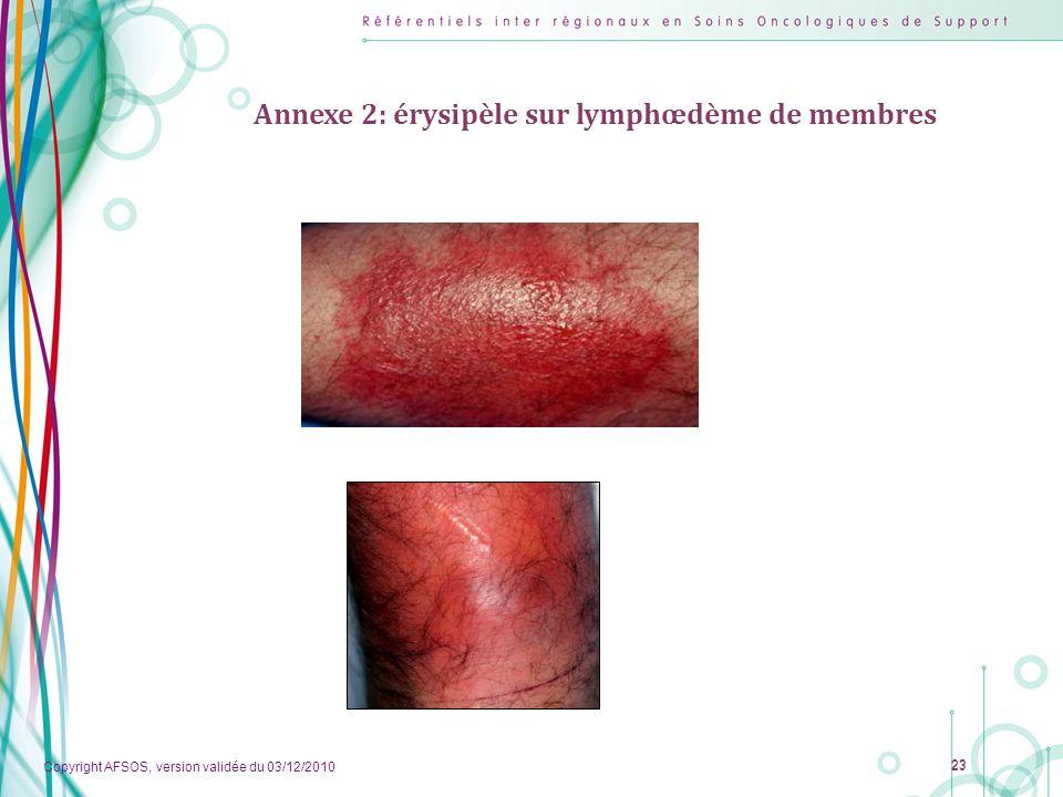Annexe 2: érysipèle sur lymphœdème de membres