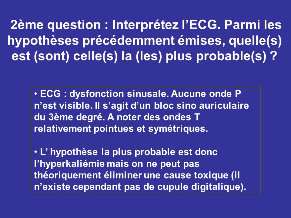 2ème question : Interprétez l'ECG