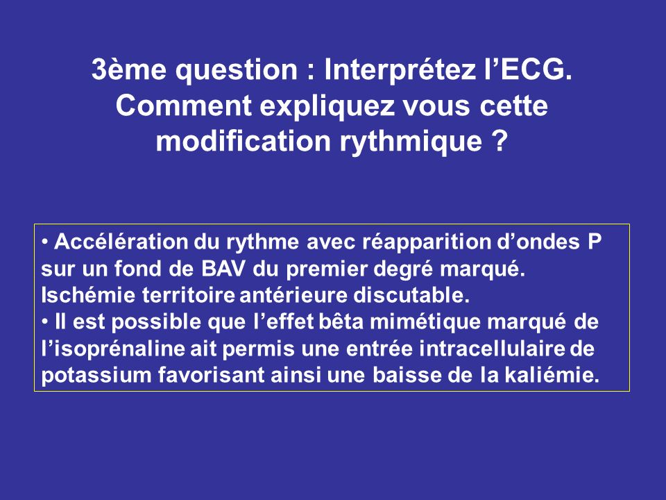 3ème question : Interprétez l'ECG