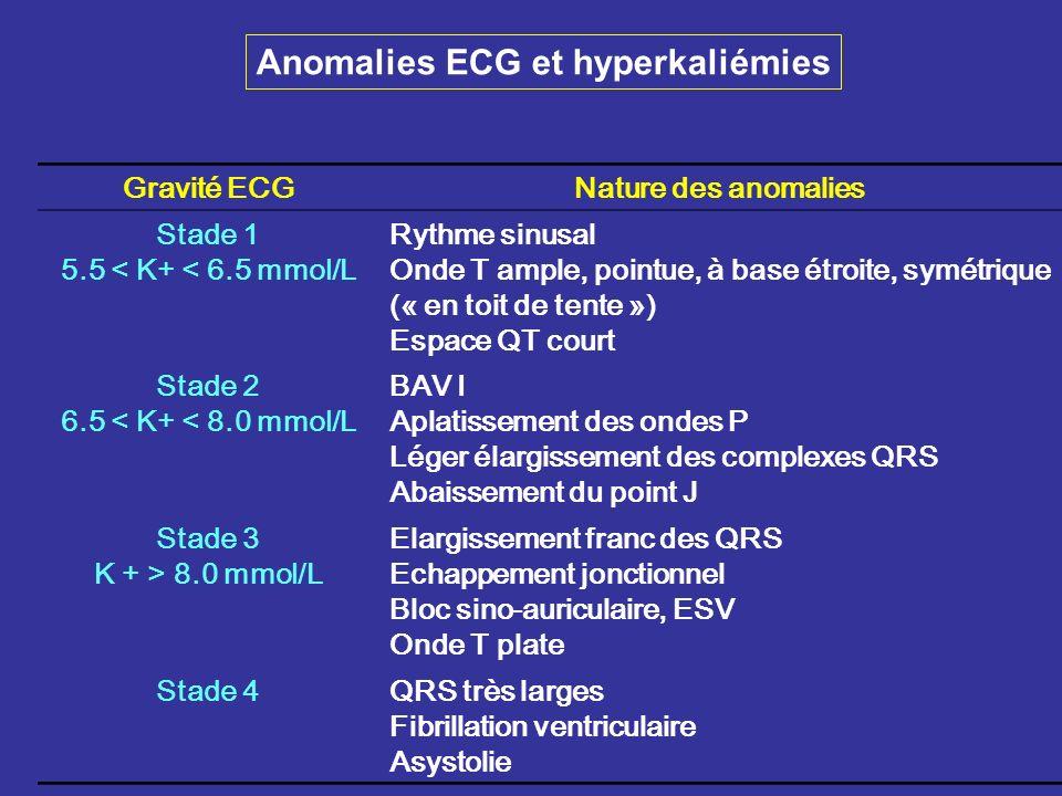 Anomalies ECG et hyperkaliémies