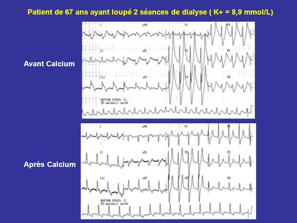 Patient de 67 ans ayant loupé 2 séances de dialyse ( K+ = 8,9 mmol/L)