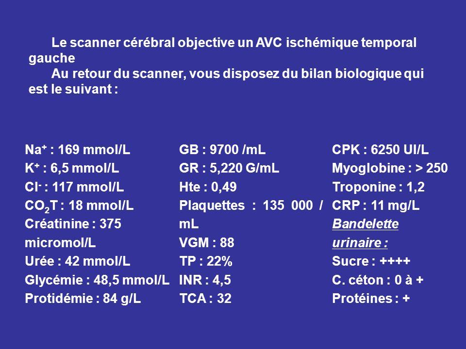 Le scanner cérébral objective un AVC ischémique temporal gauche