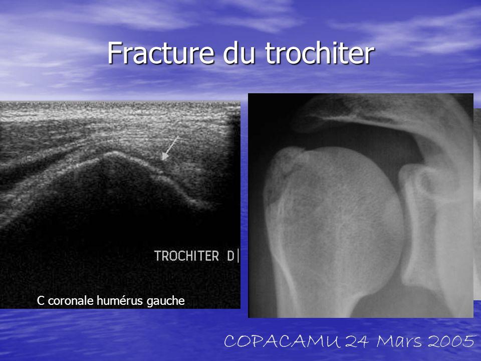 Fracture du trochiter C coronale humérus gauche COPACAMU 24 Mars 2005