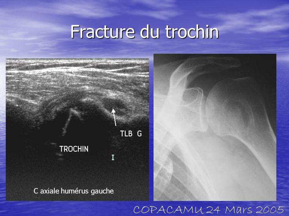 Fracture du trochin C axiale humérus gauche COPACAMU 24 Mars 2005