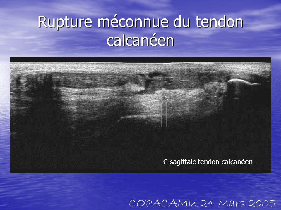 Rupture méconnue du tendon calcanéen