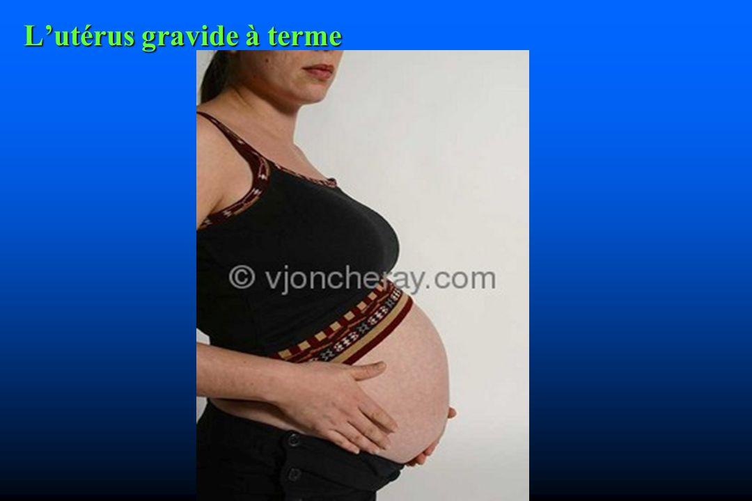 L'utérus gravide à terme