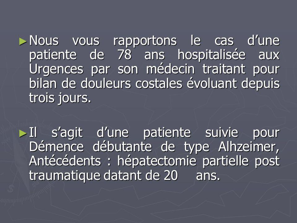 Nous vous rapportons le cas d'une patiente de 78 ans hospitalisée aux Urgences par son médecin traitant pour bilan de douleurs costales évoluant depuis trois jours.