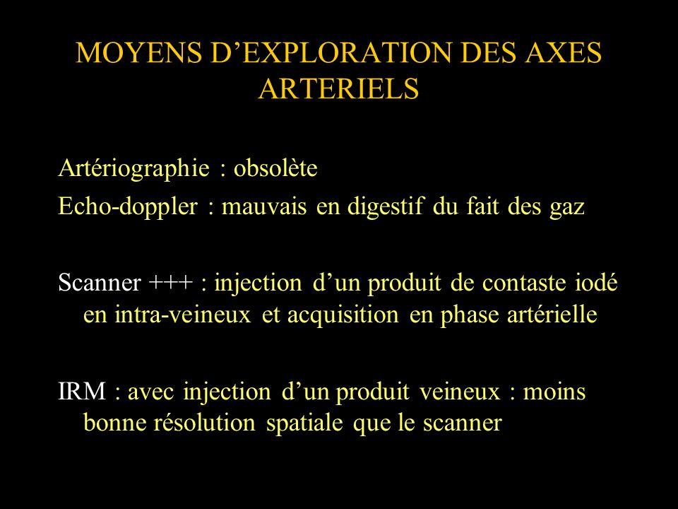 MOYENS D'EXPLORATION DES AXES ARTERIELS