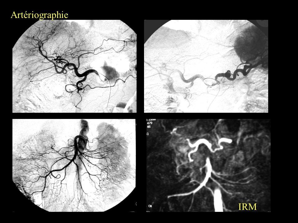 Artériographie IRM