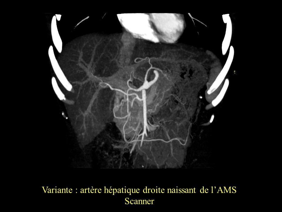 Variante : artère hépatique droite naissant de l'AMS