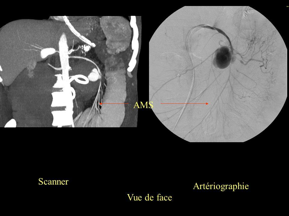 AMS Scanner Artériographie Vue de face