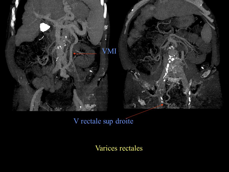VMI V rectale sup droite Varices rectales