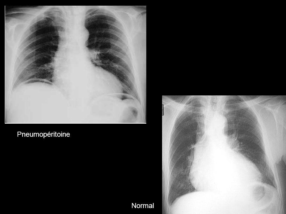 Pneumopéritoine Normal 103