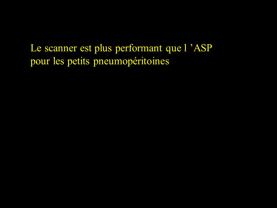 Le scanner est plus performant que l 'ASP