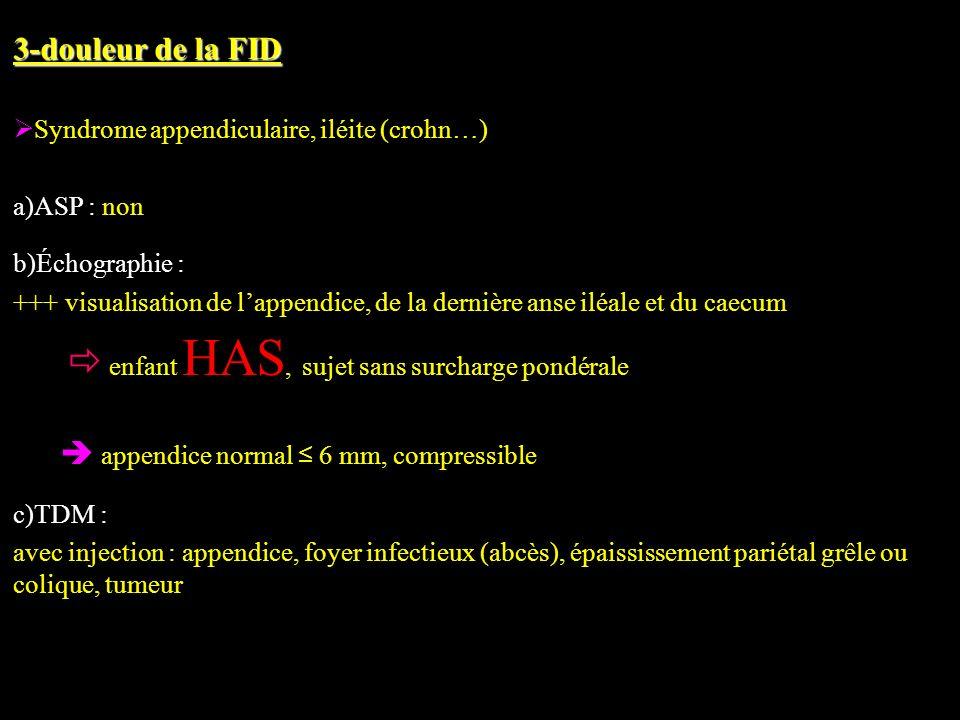 3-douleur de la FID Syndrome appendiculaire, iléite (crohn…)
