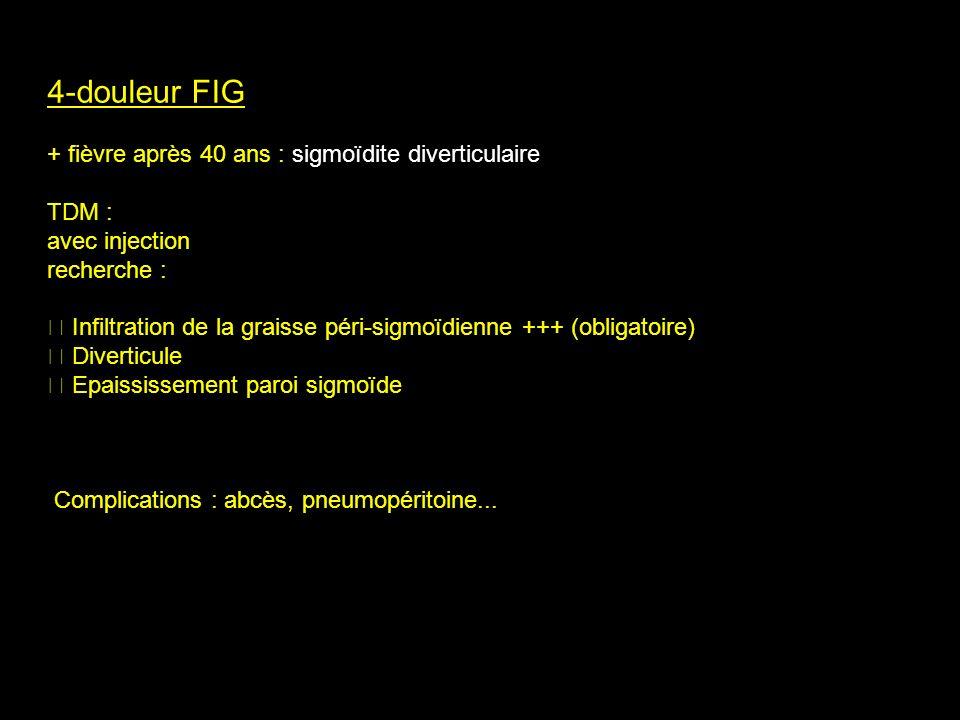 4-douleur FIG + fièvre après 40 ans : sigmoïdite diverticulaire TDM :